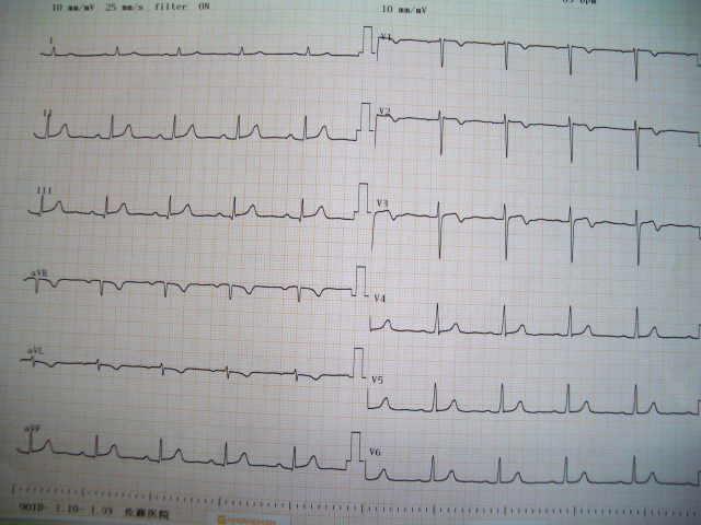 4月19日の心電図 (第1例 Y.K. 発症25日目)