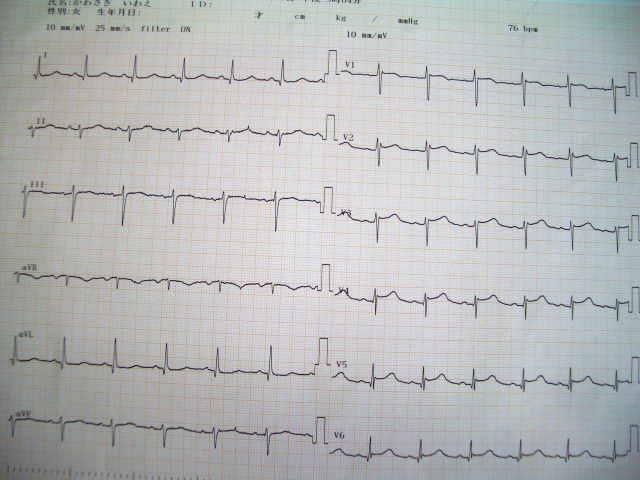 3月23日の心電図