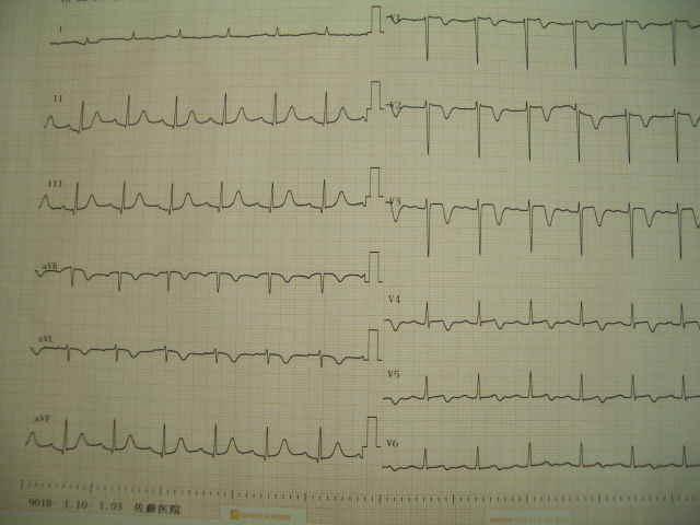 3月25日の心電図