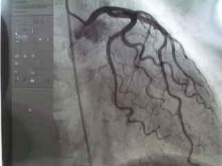 冠動脈造影