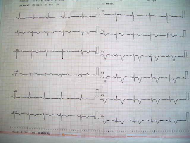 4月8日の心電図